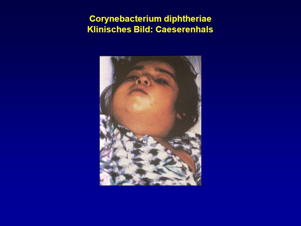Corynebacterium diphtheriae Klinisches Bild: Caeserenhals