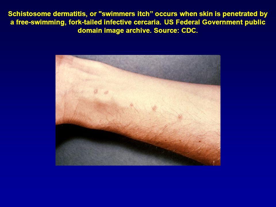 Schistosome dermatitis, or