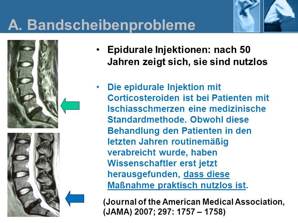 Epidurale Injektionen: nach 50 Jahren zeigt sich, sie sind nutzlos Die epidurale Injektion mit Corticosteroiden ist bei Patienten mit Ischiasschmerzen