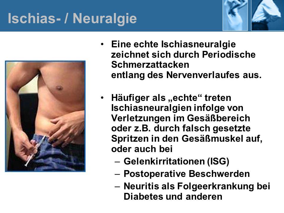 Ischias- / Neuralgie Eine echte Ischiasneuralgie zeichnet sich durch Periodische Schmerzattacken entlang des Nervenverlaufes aus. Häufiger als echte t
