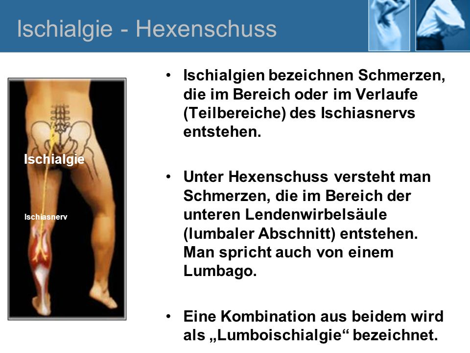 Ischialgien bezeichnen Schmerzen, die im Bereich oder im Verlaufe (Teilbereiche) des Ischiasnervs entstehen. Unter Hexenschuss versteht man Schmerzen,