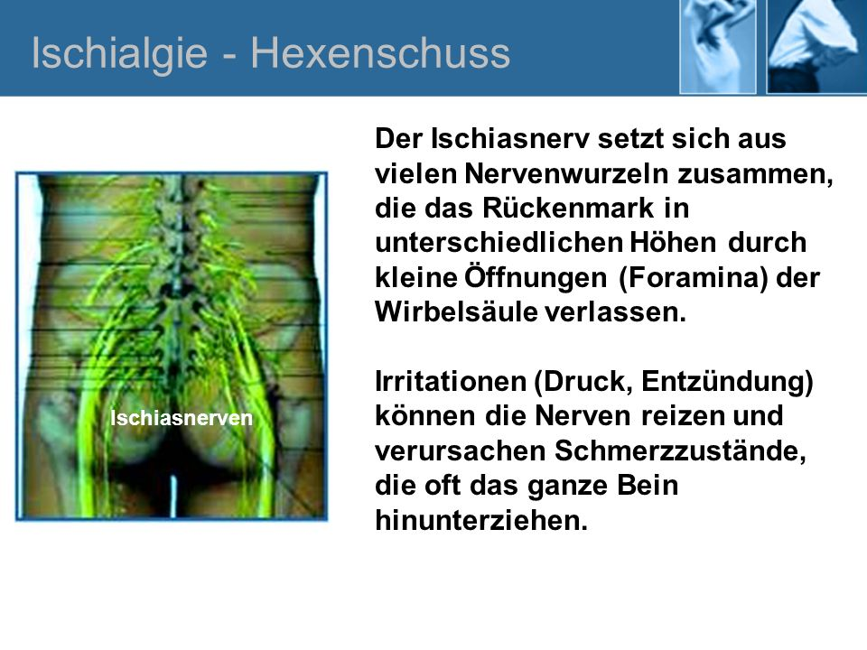 Der Ischiasnerv setzt sich aus vielen Nervenwurzeln zusammen, die das Rückenmark in unterschiedlichen Höhen durch kleine Öffnungen (Foramina) der Wirb