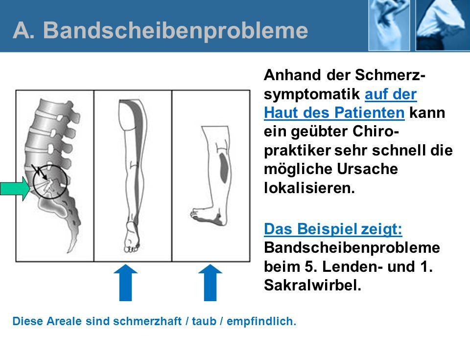 Der Schmerzverlauf in einem ganz bestimmten, oberflächlichen Haut- bereich des Beines lässt die Vermutung zu, dass es sich um ein Bandscheibenproblem zwischen dem Lenden- wirbel Nr.3 und dem 4.