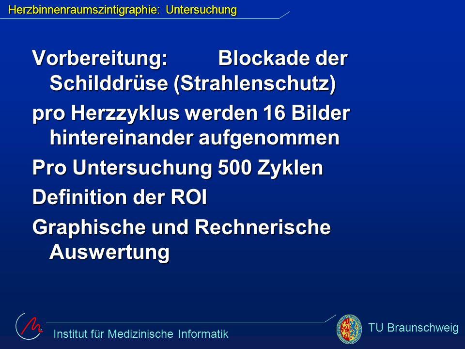 Institut für Medizinische Informatik TU Braunschweig Herzbinnenraumszintigraphie: Untersuchung Vorbereitung: Blockade der Schilddrüse (Strahlenschutz)