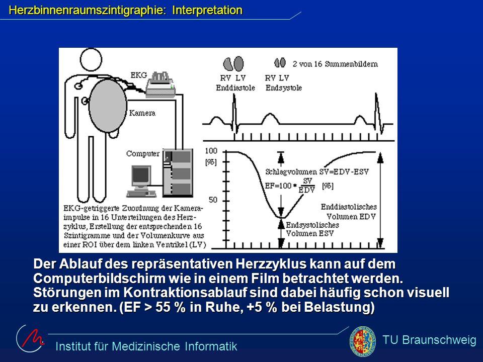 Institut für Medizinische Informatik TU Braunschweig Herzbinnenraumszintigraphie: Interpretation Der Ablauf des repräsentativen Herzzyklus kann auf de
