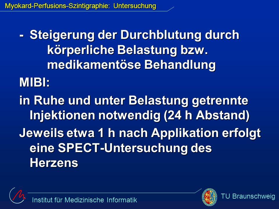 Institut für Medizinische Informatik TU Braunschweig Thallium: Nach Injektion wird die Belastung 1-2 min fortgeführt, unmittelbar gefolgt von einer SPECT-Untersuchung Nach ca.