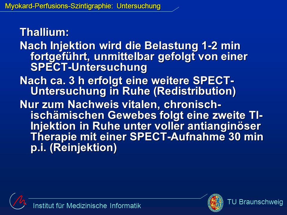 Institut für Medizinische Informatik TU Braunschweig Thallium: Nach Injektion wird die Belastung 1-2 min fortgeführt, unmittelbar gefolgt von einer SP
