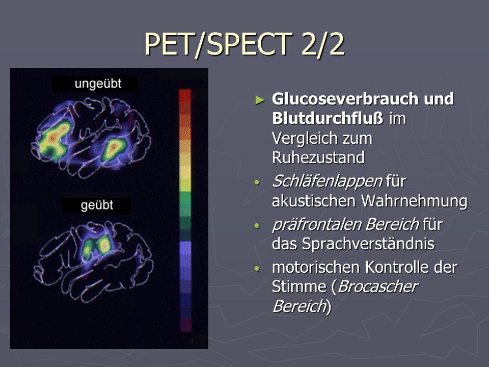 PET/SPECT 2/2 Glucoseverbrauch und Blutdurchfluß im Vergleich zum Ruhezustand Schläfenlappen für akustischen Wahrnehmung präfrontalen Bereich für das