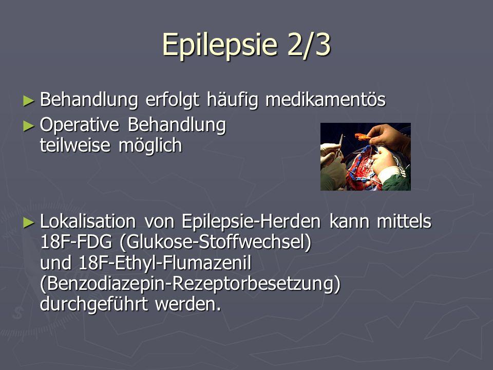 Epilepsie 2/3 Behandlung erfolgt häufig medikamentös Behandlung erfolgt häufig medikamentös Operative Behandlung teilweise möglich Operative Behandlun