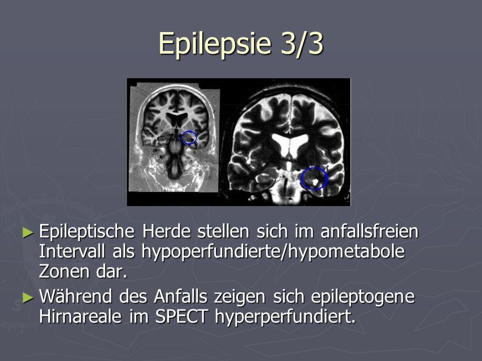 Epilepsie 3/3 Epileptische Herde stellen sich im anfallsfreien Intervall als hypoperfundierte/hypometabole Zonen dar. Während des Anfalls zeigen sich