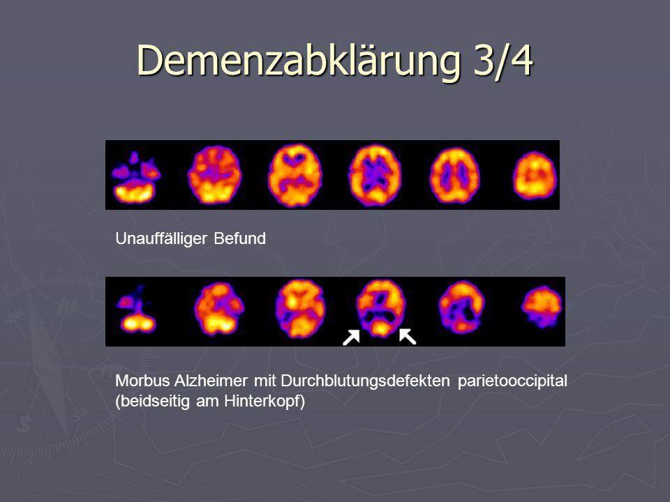 Demenzabklärung 3/4 Unauffälliger Befund Morbus Alzheimer mit Durchblutungsdefekten parietooccipital (beidseitig am Hinterkopf)