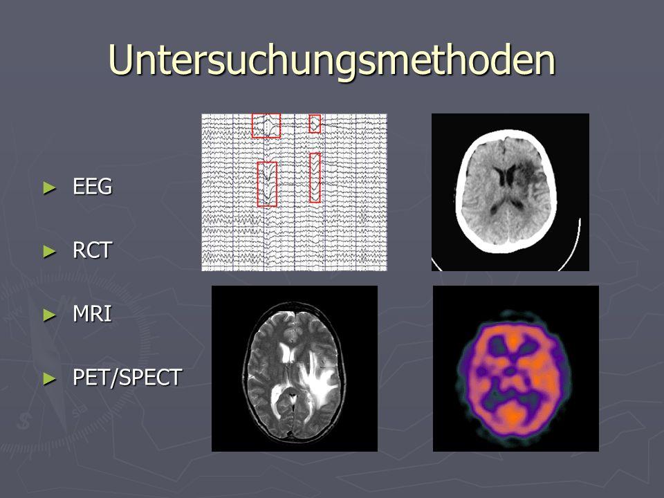 Untersuchungsmethoden EEG EEG RCT RCT MRI MRI PET/SPECT PET/SPECT