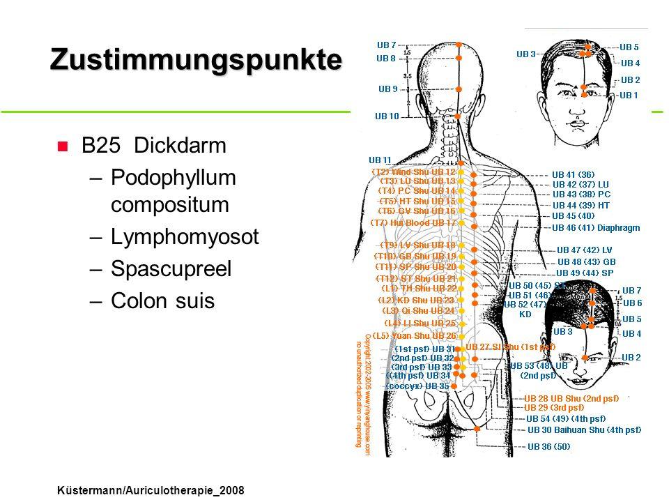 Küstermann/Auriculotherapie_2008 Zustimmungspunkte n B25Dickdarm –Podophyllum compositum –Lymphomyosot –Spascupreel –Colon suis