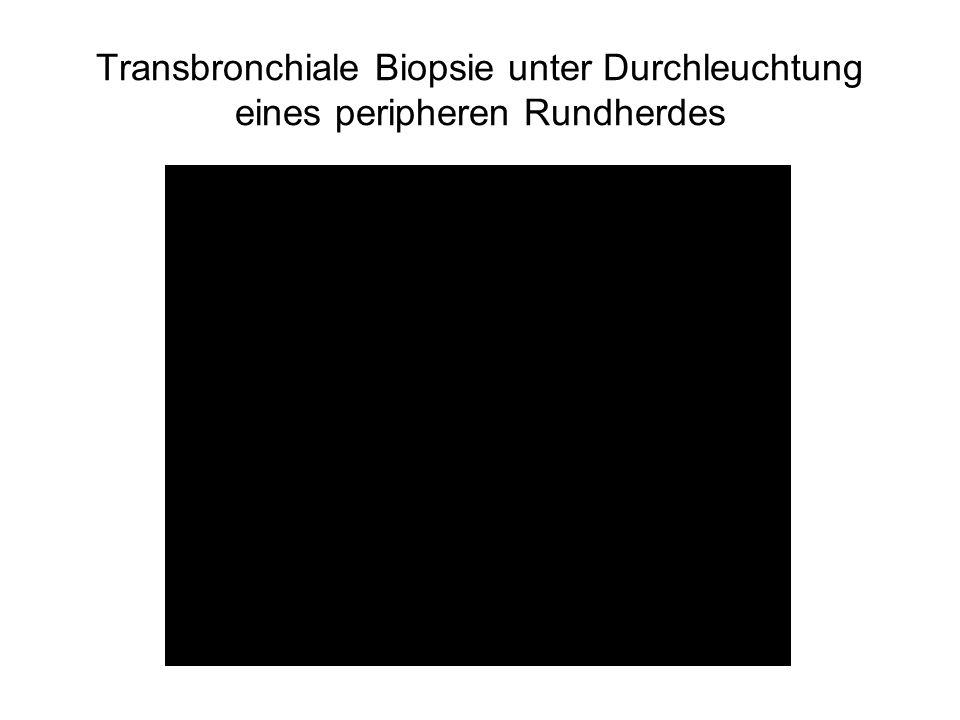 Anzahl der Bronchoskopien in der AG Bronchoskopie der Gesellschaft für Pädiatrische Pneumologie Nicolai T.
