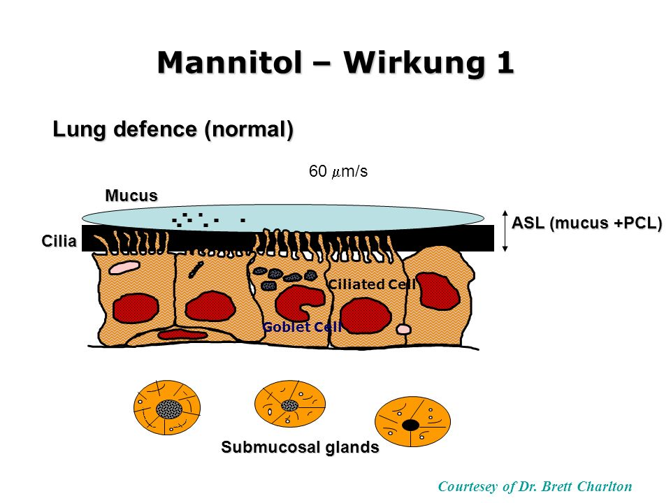 Lung defence (normal) Mucus ASL (mucus +PCL) Submucosal glands Cilia Mannitol – Wirkung 1 Goblet Cell Ciliated Cell 60 m/s Courtesey of Dr.
