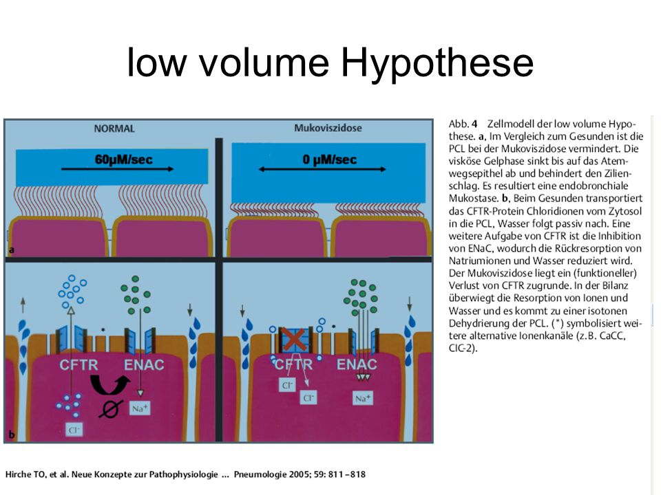 low volume Hypothese