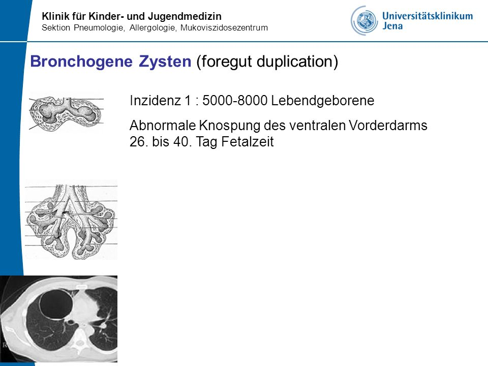 Klinik für Kinder- und Jugendmedizin Sektion Pneumologie, Allergologie, Mukoviszidosezentrum Bronchogene Zysten (foregut duplication) Inzidenz 1 : 500