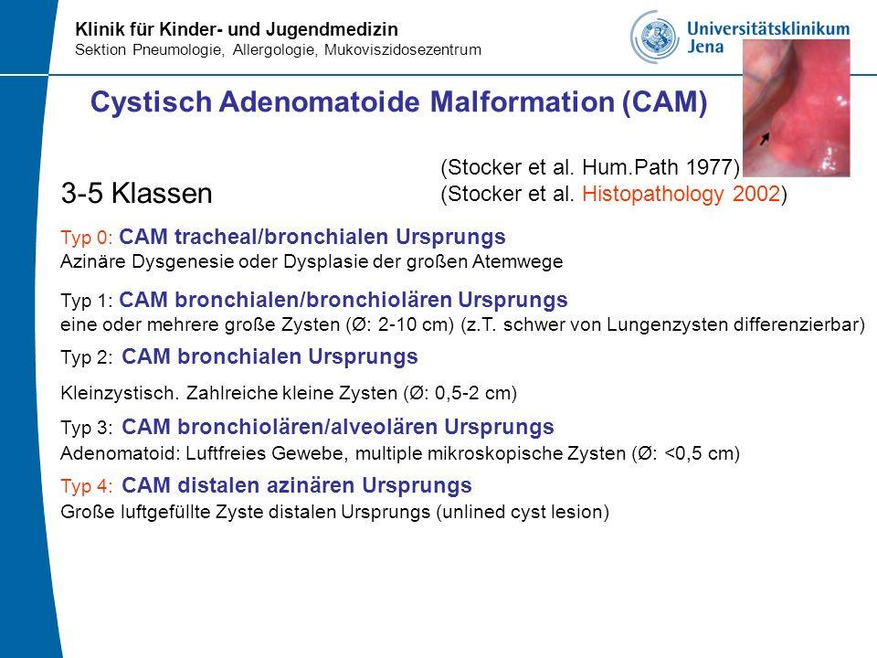 Klinik für Kinder- und Jugendmedizin Sektion Pneumologie, Allergologie, Mukoviszidosezentrum Cystisch Adenomatoide Malformation (CAM) 3-5 Klassen Typ