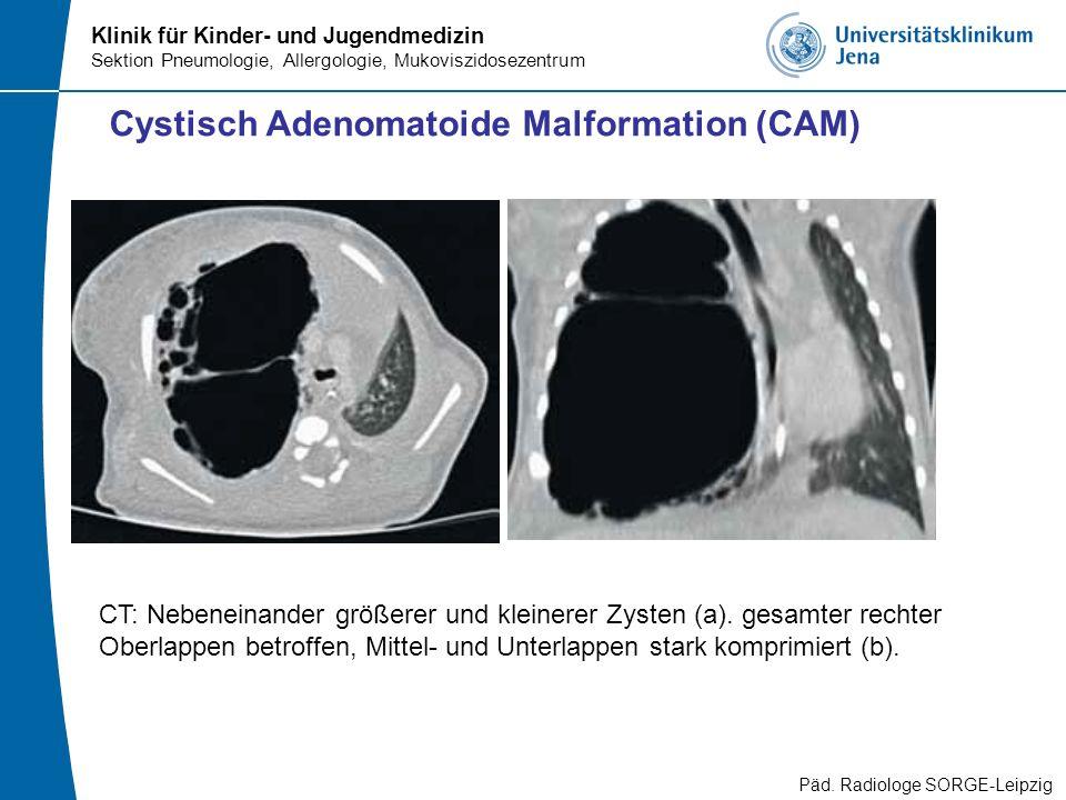 Klinik für Kinder- und Jugendmedizin Sektion Pneumologie, Allergologie, Mukoviszidosezentrum Cystisch Adenomatoide Malformation (CAM) CT: Nebeneinande