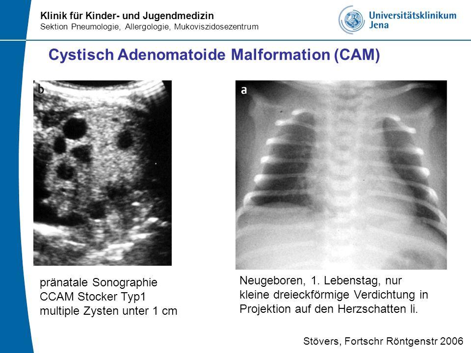 Klinik für Kinder- und Jugendmedizin Sektion Pneumologie, Allergologie, Mukoviszidosezentrum Cystisch Adenomatoide Malformation (CAM) Stövers, Fortsch