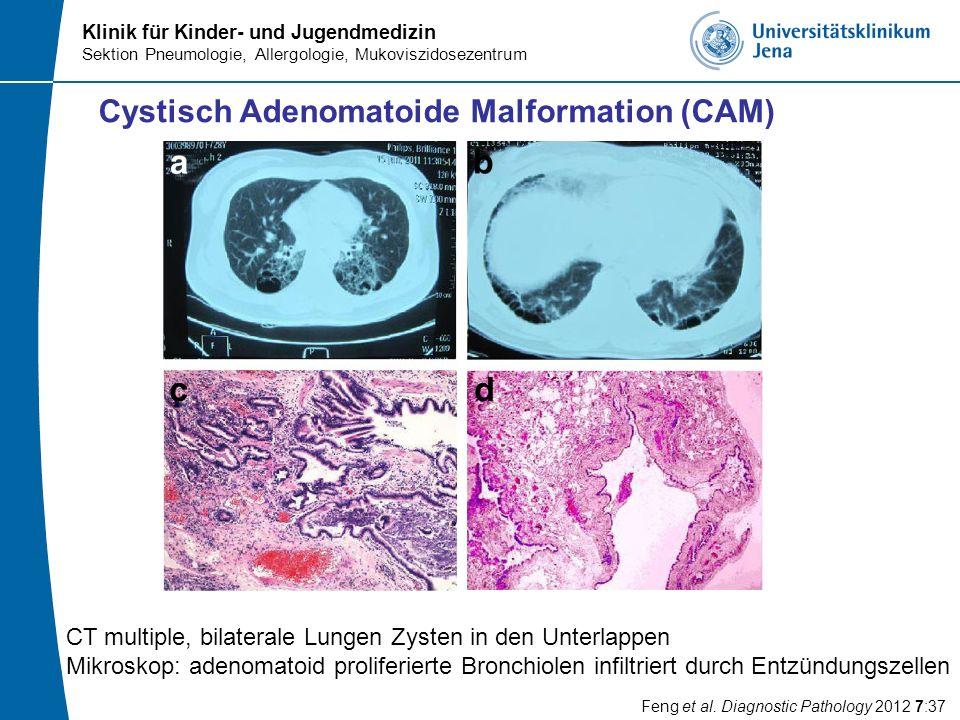 Klinik für Kinder- und Jugendmedizin Sektion Pneumologie, Allergologie, Mukoviszidosezentrum Cystisch Adenomatoide Malformation (CAM) CT multiple, bil