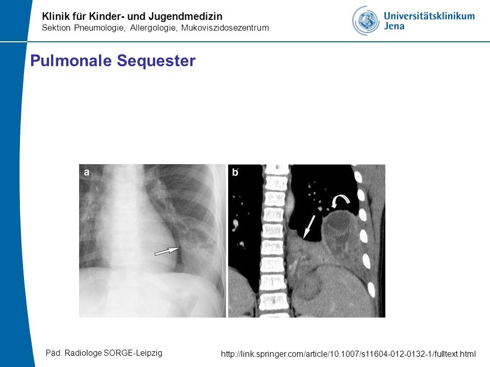 Pulmonale Sequester http://link.springer.com/article/10.1007/s11604-012-0132-1/fulltext.html Päd. Radiologe SORGE-Leipzig
