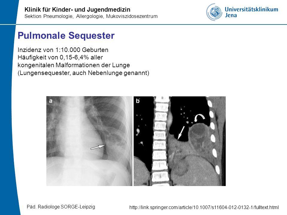 Klinik für Kinder- und Jugendmedizin Sektion Pneumologie, Allergologie, Mukoviszidosezentrum Pulmonale Sequester http://link.springer.com/article/10.1