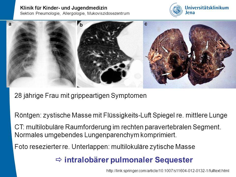 Klinik für Kinder- und Jugendmedizin Sektion Pneumologie, Allergologie, Mukoviszidosezentrum 28 jährige Frau mit grippeartigen Symptomen Röntgen: zyst