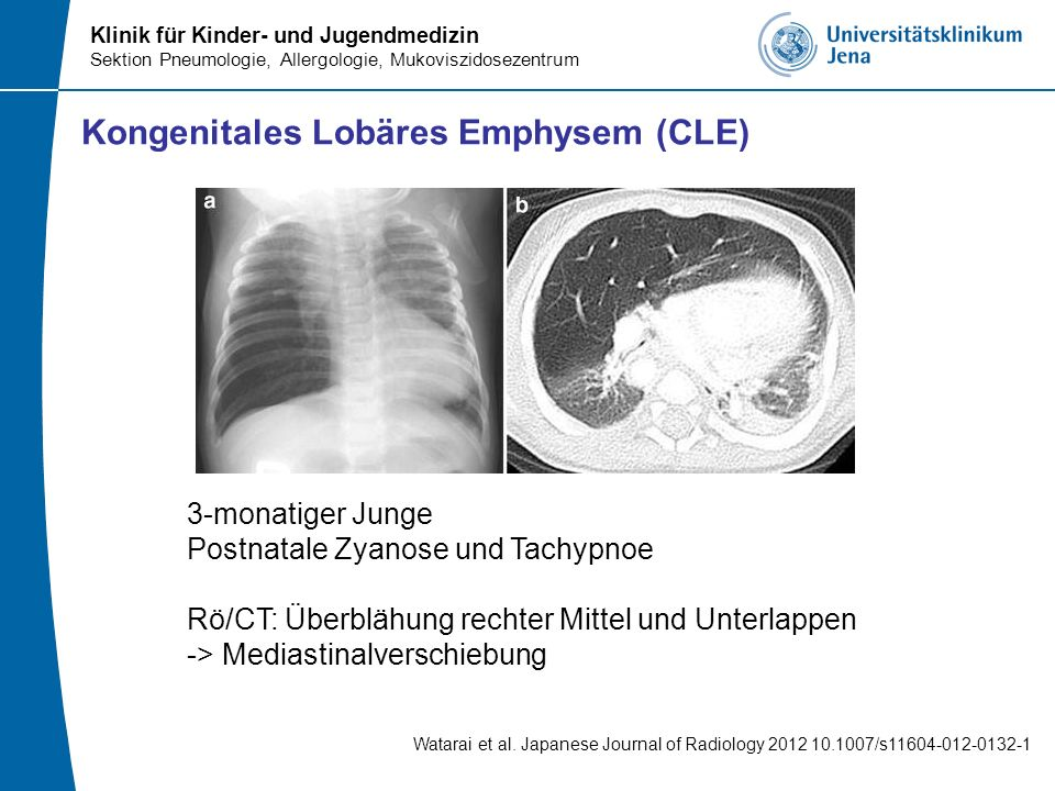 Klinik für Kinder- und Jugendmedizin Sektion Pneumologie, Allergologie, Mukoviszidosezentrum Kongenitales Lobäres Emphysem (CLE) Watarai et al. Japane