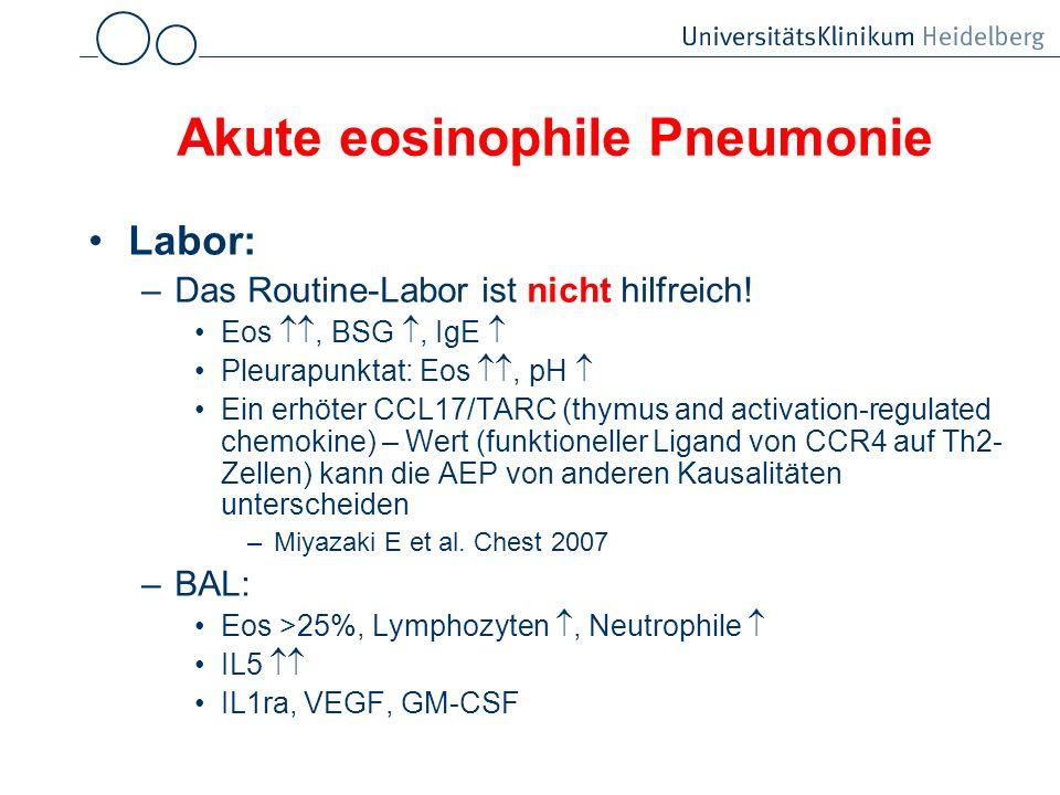Akute eosinophile Pneumonie Labor: –Das Routine-Labor ist nicht hilfreich! Eos, BSG, IgE Pleurapunktat: Eos, pH Ein erhöter CCL17/TARC (thymus and act