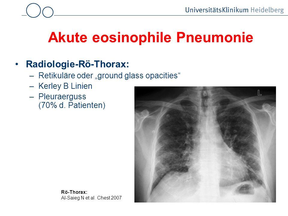 Akute eosinophile Pneumonie Radiologie-Rö-Thorax: –Retikuläre oder ground glass opacities –Kerley B Linien –Pleuraerguss (70% d. Patienten) Rö-Thorax: