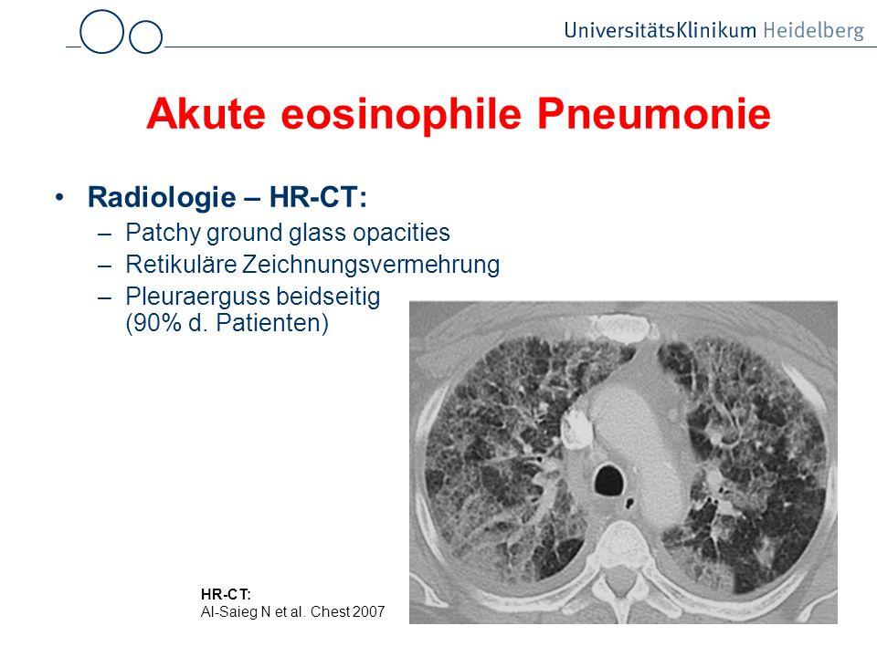Akute eosinophile Pneumonie Radiologie – HR-CT: –Patchy ground glass opacities –Retikuläre Zeichnungsvermehrung –Pleuraerguss beidseitig (90% d. Patie