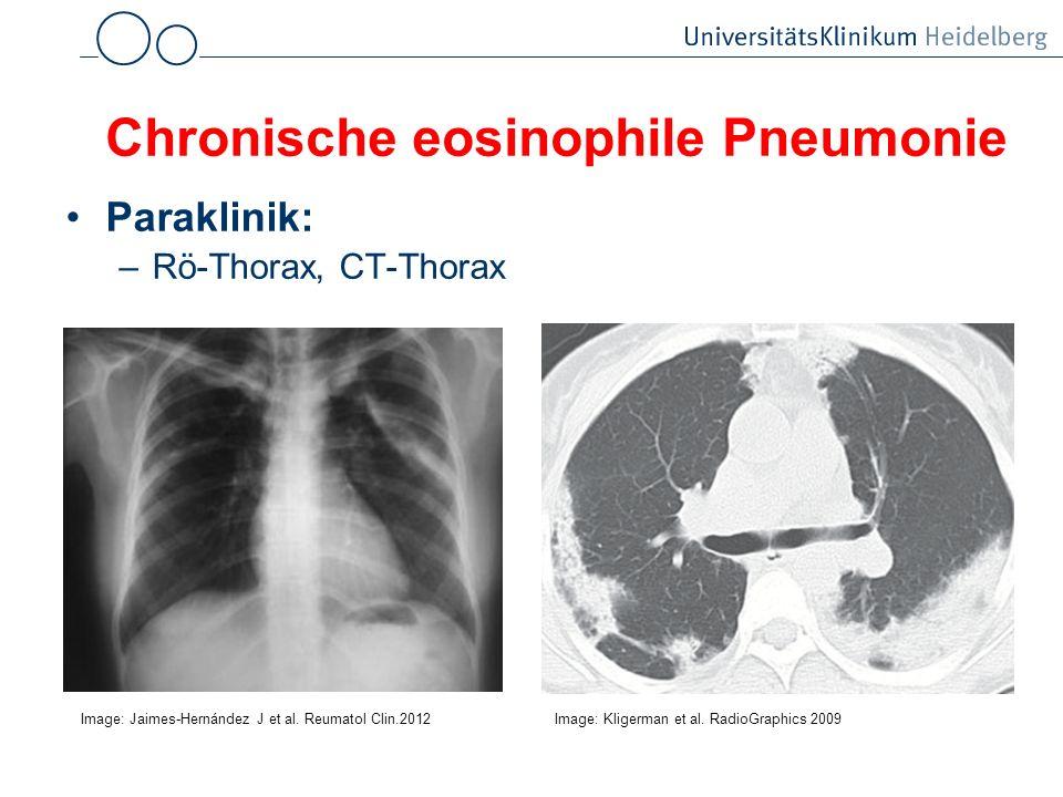 Chronische eosinophile Pneumonie Paraklinik: –Rö-Thorax, CT-Thorax Image: Kligerman et al. RadioGraphics 2009 Image: Jaimes-Hernández J et al. Reumato