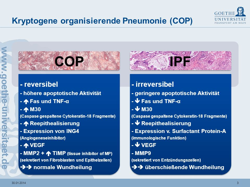330.01.2014 Kryptogene organisierende Pneumonie (COP) IPFCOP - reversibel - höhere apoptotische Aktivität - Fas und TNF-α - M30 (Caspase gespaltene Cytokeratin-18 Fragmente) - Reepithealisierung - Expression von ING4 (Angiogeneseinhibitor) - VEGF - MMP2 + TIMP (tissue inhibitor of MP) (sekretiert von Fibroblasten und Epithelzellen) normale Wundheilung - irreversibel - geringere apoptotische Aktivität - Fas und TNF-α - M30 (Caspase gespaltene Cytokeratin-18 Fragmente) - Reepithealisierung - Expression v.