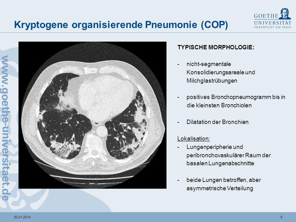 430.01.2014 Kryptogene organisierende Pneumonie (COP) KLINIK: sehr unspezifisch -50 – 60 Jahre -m : w = 1 : 1 -häufiger Nichtraucher und Ex-Raucher betroffen (v.a.