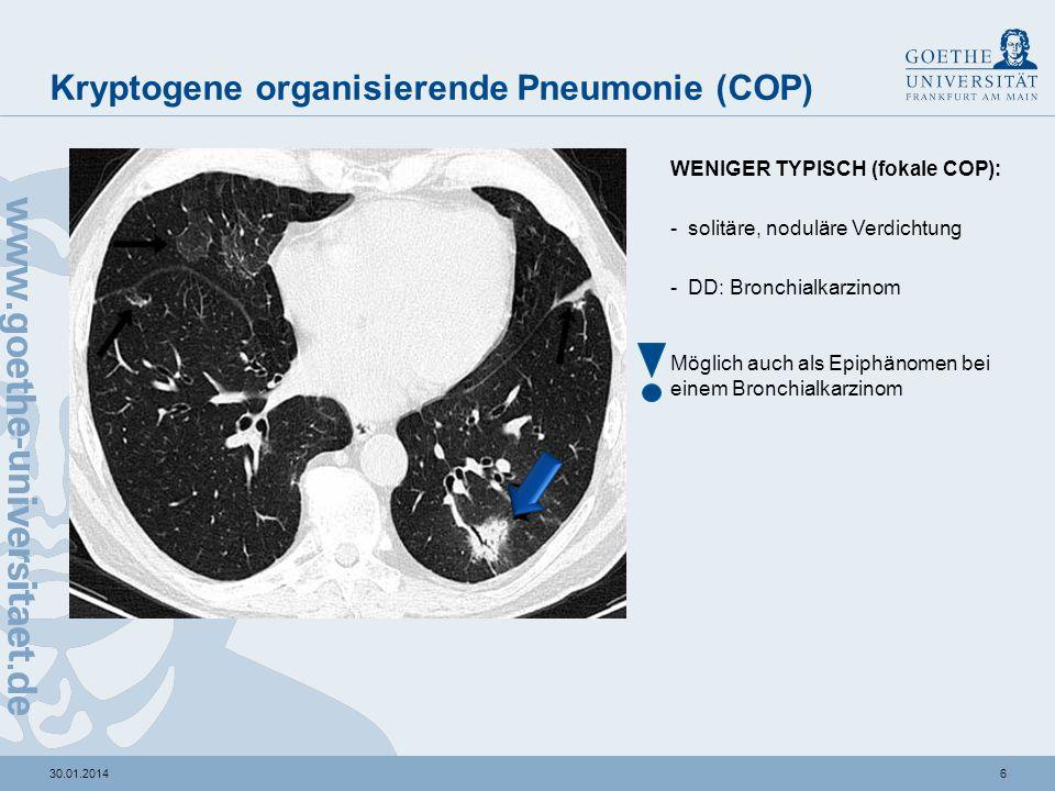 530.01.2014 Kryptogene organisierende Pneumonie (COP) TYPISCHE MORPHOLOGIE: -nicht-segmentale Konsolidierungsareale und Milchglastrübungen -positives