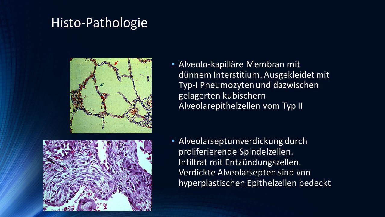 Alveolo-kapilläre Membran mit dünnem Interstitium. Ausgekleidet mit Typ-I Pneumozyten und dazwischen gelagerten kubischern Alveolarepithelzellen vom T