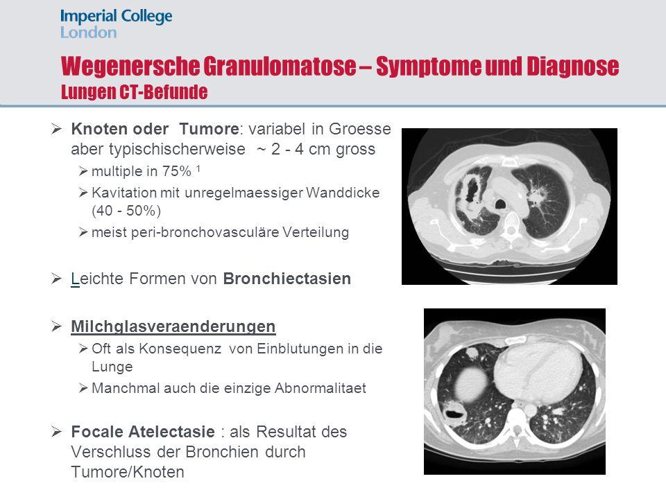 Wegenersche Granulomatose – Symptome und Diagnose Lungen CT-Befunde Knoten oder Tumore: variabel in Groesse aber typischischerweise ~ 2 - 4 cm gross m