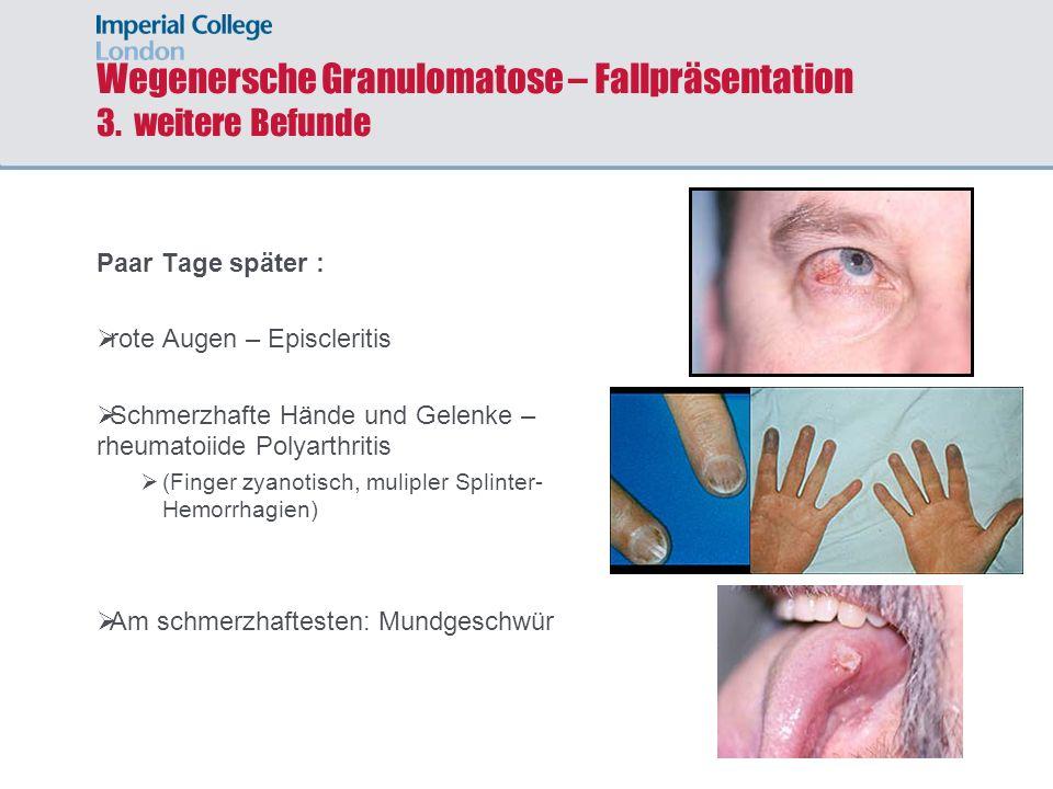 Wegenersche Granulomatose – Fallpräsentation 3. weitere Befunde Paar Tage später : rote Augen – Episcleritis Schmerzhafte Hände und Gelenke – rheumato