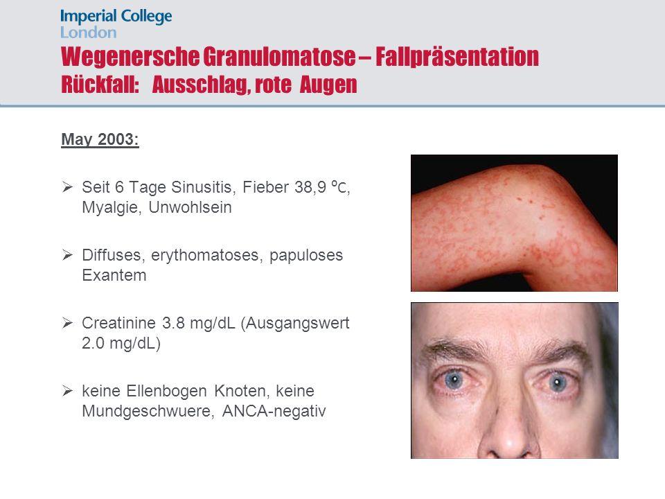 Wegenersche Granulomatose – Fallpräsentation Rückfall: Ausschlag, rote Augen May 2003: Seit 6 Tage Sinusitis, Fieber 38,9 C, Myalgie, Unwohlsein Diffu
