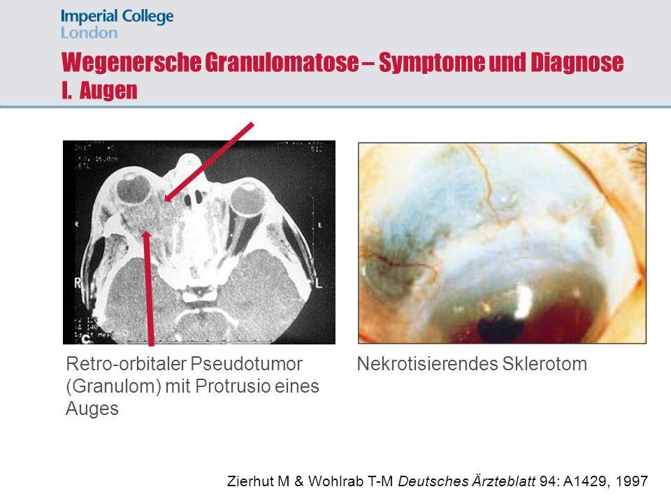 Wegenersche Granulomatose – Symptome und Diagnose I. Augen Retro-orbitaler Pseudotumor (Granulom) mit Protrusio eines Auges Zierhut M & Wohlrab T-M De