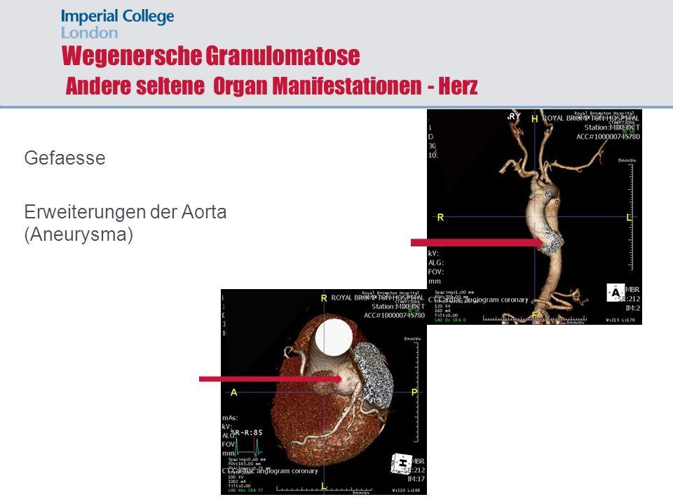 Wegenersche Granulomatose Andere seltene Organ Manifestationen - Herz Gefaesse Erweiterungen der Aorta (Aneurysma)