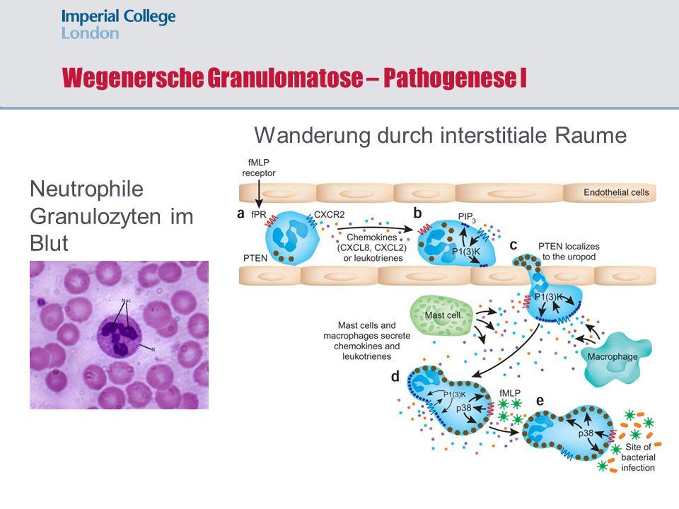 Wegenersche Granulomatose – Pathogenese I Neutrophile Granulozyten im Blut Wanderung durch interstitiale Raume