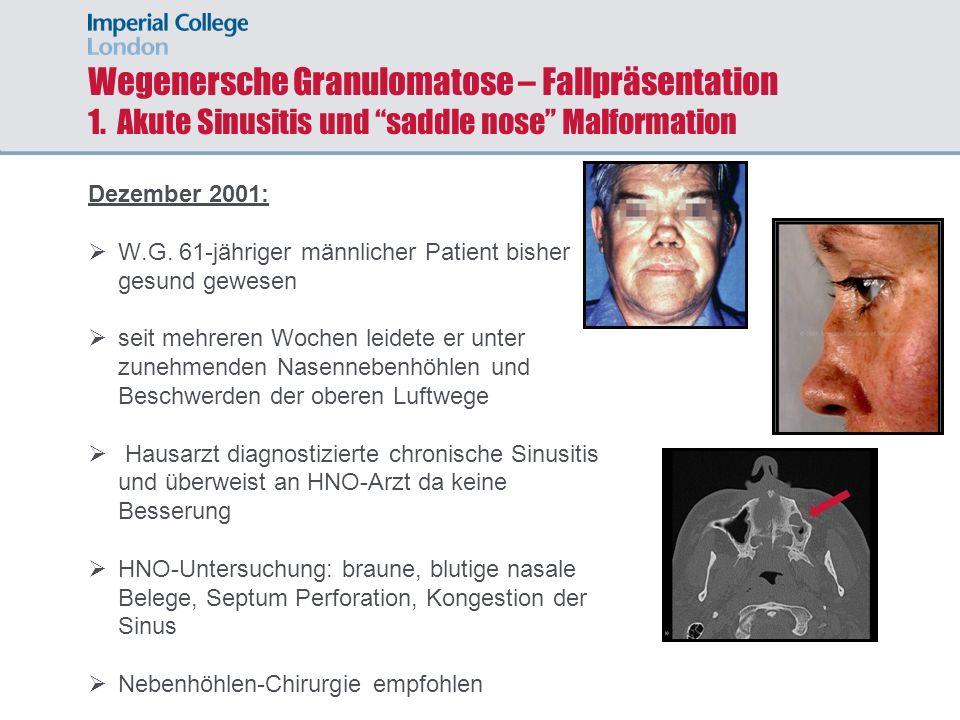 Wegenersche Granulomatose – Fallpräsentation 1. Akute Sinusitis und saddle nose Malformation Dezember 2001: W.G. 61-jähriger männlicher Patient bisher