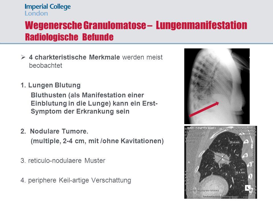 Wegenersche Granulomatose – Lungenmanifestation Radiologische Befunde 4 charkteristische Merkmale werden meist beobachtet 1. Lungen Blutung Bluthusten