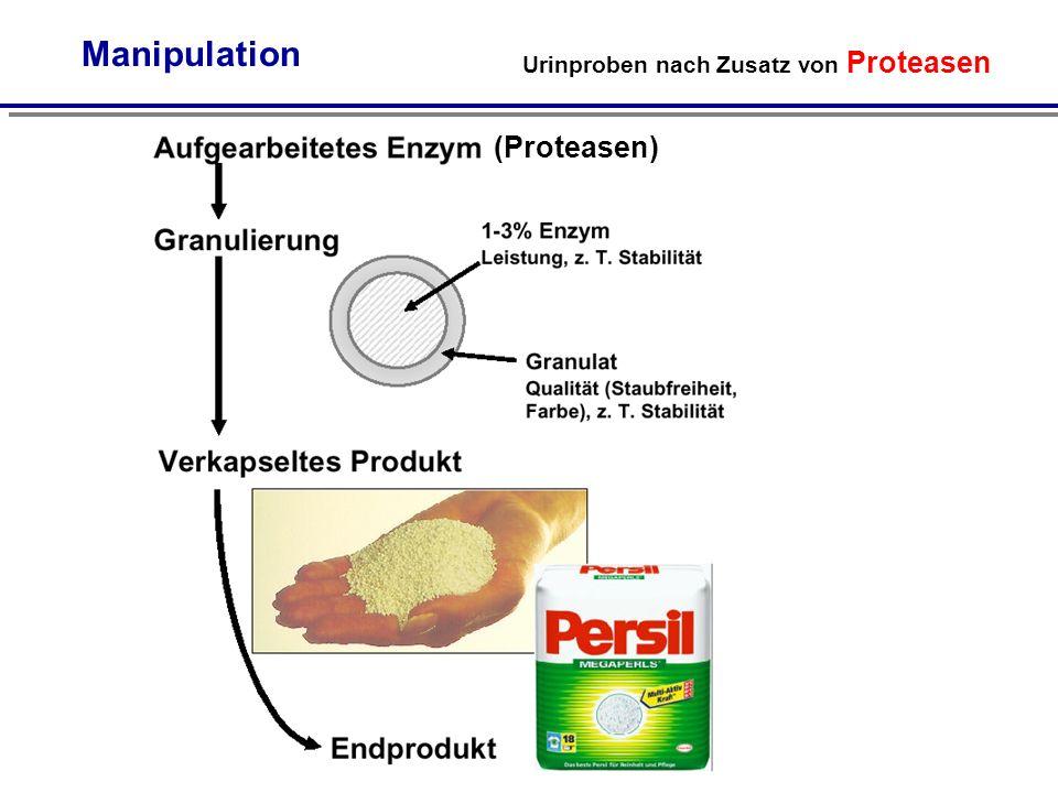 Urinproben nach Zusatz von Proteasen Manipulation (Proteasen)