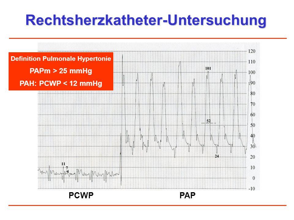 Rechtsherzkatheter-Untersuchung PCWPPAP Definition Pulmonale Hypertonie PAPm > 25 mmHg PAH: PCWP < 12 mmHg