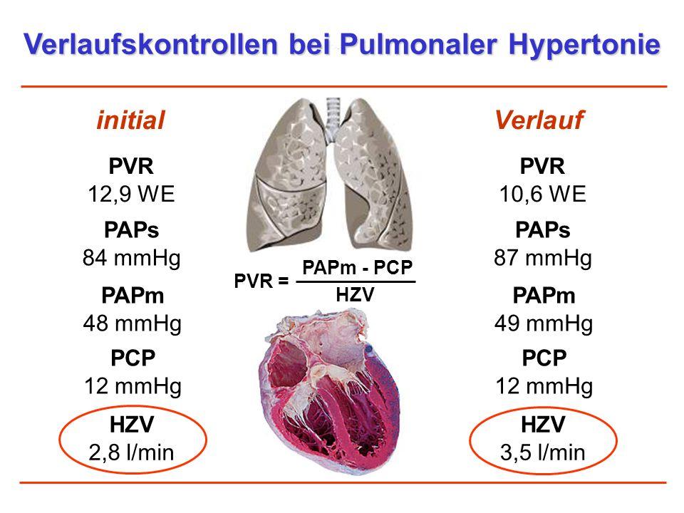 Verlaufskontrollen bei Pulmonaler Hypertonie initialVerlauf PVR 12,9 WE HZV 2,8 l/min PVR = HZV PAPm - PCP PAPm 48 mmHg PAPs 84 mmHg PCP 12 mmHg PVR 1