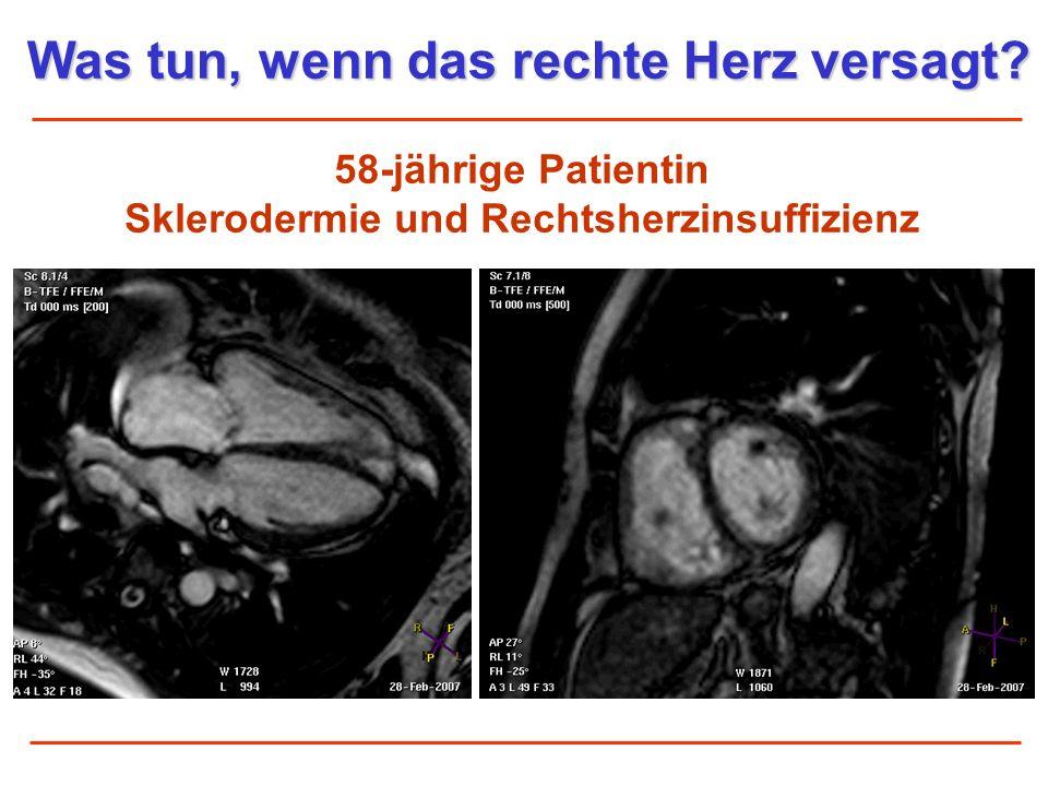 58-jährige Patientin Sklerodermie und Rechtsherzinsuffizienz