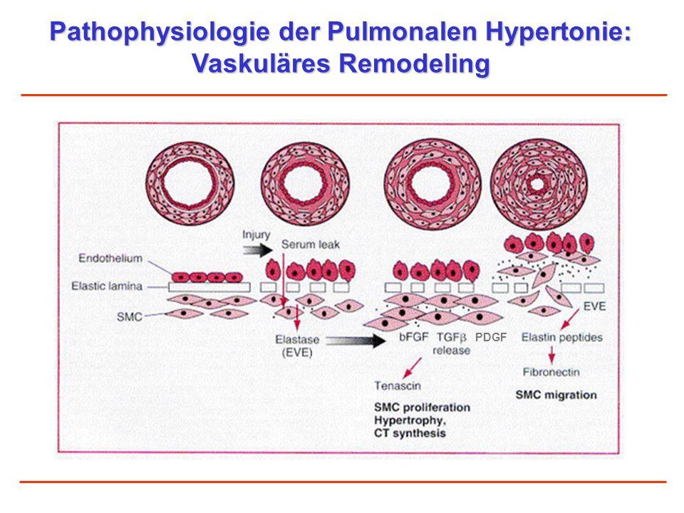 Pathophysiologie der Pulmonalen Hypertonie: Vaskuläres Remodeling PDGF